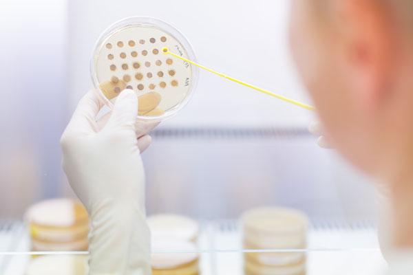 Mikrobiologisk analyse